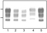 Thumbnail of Western blot analyses of protease-resistant prion protein from proteinase K–treated brain homogenates from cattle transmissible spongiform encephalopathies (TSEs). Typical bovine spongiform encephalopathy (BSE) (lanes 1, 5), L-type BSE (lane 2), transmissible mink encephalopathy (TME) in cattle (lane 3), H-type BSE (lane 4). Bars to the left of the panel indicate the 29.0- and 20.1-kDa marker positions.