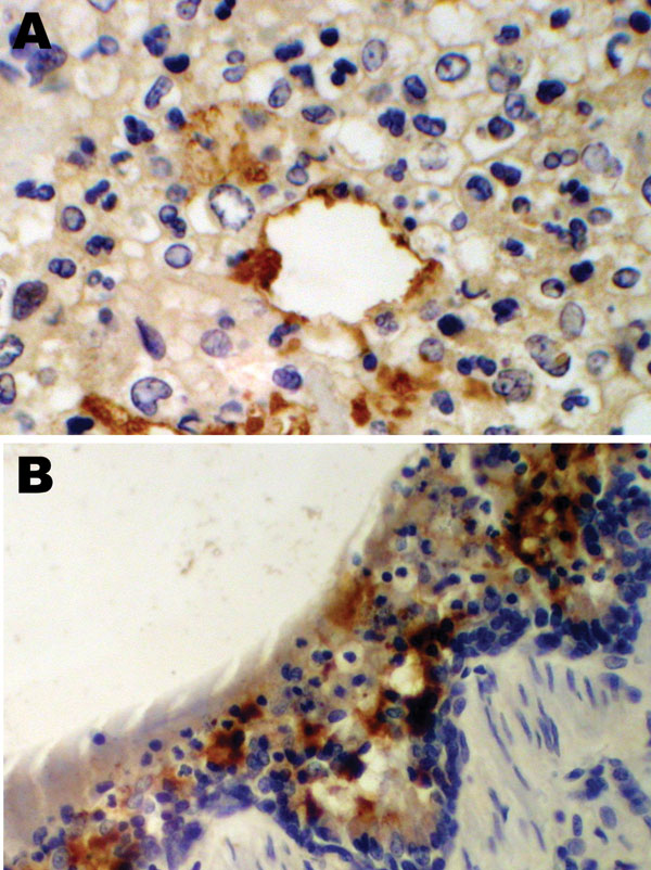 Immunohistochemical staining for equine influenza A virus (brown stain) in sections of respiratory tissue from English foxhounds involved in 2002 respiratory disease outbreak, United Kingdom. A) Case 1, showing focal staining of an apparently necrotic bronchiole in an area of pneumonia; magnification x100. B) Case 2, showing a large amount of staining throughout the epithelium and inflammatory cells present in the brush border; magnification x200; hematoxylin counterstain.