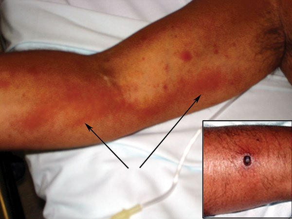 Lymphangitis extending from the right forearm to the axilla and (inset) eschar on right forearm, caused by Rickettsia sibirica mongolitimonae strain. Arrows indicate lymphangitis.