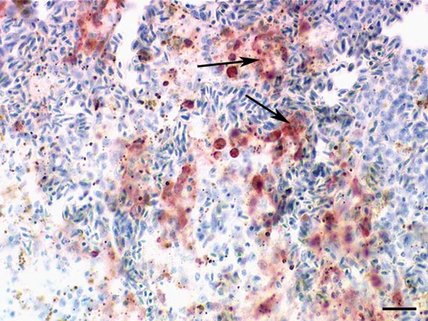 Immunohistochemical demonstration of influenza A virus antigen (red, see arrows) in numerous splenic macrophages of a falcon after challenge with 106.0 50% egg infectious doses of the highly pathogenic avian influenza strain A/Cygnus cygnus/Germany/R65/06 (H5N1). Avidin-biotin-peroxidase complex method. Bar = 25 μm.