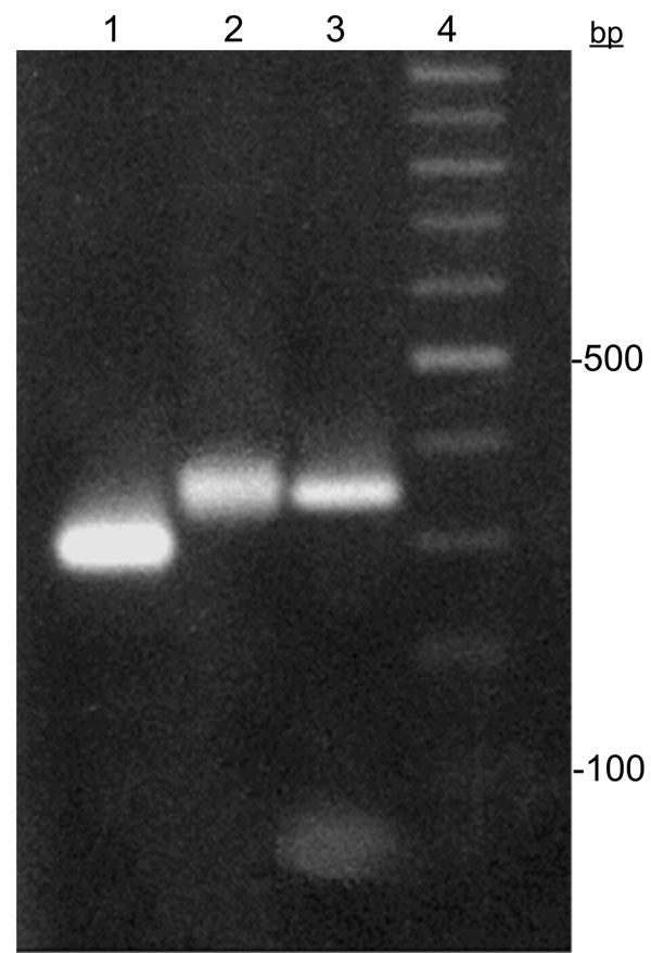 Trypanosoma cruzi miniexon gene typing assay. Lanes 1 and 2, T. cruzi II (300 bp) and T. cruzi I (350 bp) markers, respectively; lane 3, T. cruzi I cloned fragment recovered from Brazilian mummy; lane 4, 100-bp ladder.