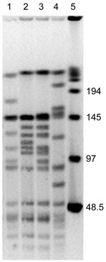 Thumbnail of SmaI macrorestriction patterns of Bartonella henselae isolates from 2 cats. Lane 1, cat 36, first isolate; lane 2, cat 36, second isolate obtained 12 months later; lane 3, cat 75, first isolate; lane 4, cat 75, second isolate obtained 12 months later; lane 5, bacteriophage λ molecular mass pulsed-field gel electrophoresis marker. Values on the right are in kilobases.