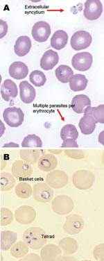 Thumbnail of Giemsa-stained (A) and Wright-stained (B) peripheral blood smear from a newborn with probable Babesia microti infection. Parasitemia was estimated in this newborn at ≈15% based on the number of parasites per 200 leukocytes counted. The smear demonstrated thrombocytopenia and parasites of variable size and morphologic appearance and an absence of pigment. Magnification ×1,000.