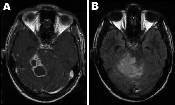 Axial brain magnetic resonance imaging at the level of the cerebellum performed 6 weeks after initial consultation. A) Contrast-enhanced T1 weighted image showing several ring-enhancing lesions in the right cerebellar hemisphere and the right cerebellar peduncle. B) The corresponding fluid attenuation inversion recovery image illustrates the extensive perifocal edema exerting a severe mass effect through compression and displacement of the fourth ventricle with consecutive enlargement of the lateral ventricle.