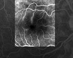 Thumbnail of Fluorescein angiograph of the right eye of the patient showing retinal occlusive vasculitis with arteriolar leakage at late phase.