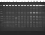 Thumbnail of Pulsed-field gel electrophoresis of isolates from patients with Alcaligenes xylosoxidans bloodstream infection. Lane 1, laboratory standard; lanes 2 and 6, community strains of A. xylosoxidans; lanes 3–5 and 7–13, outbreak strains; lane 14, central venous catheter (CVC) port biofilm outbreak strain; lane 15, CVC port outbreak stain.