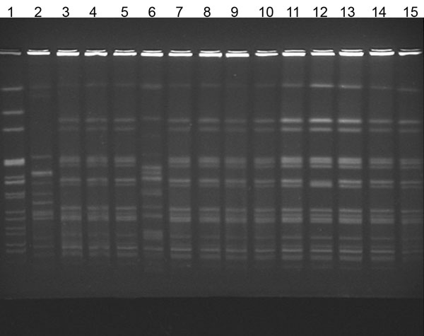 Pulsed-field gel electrophoresis of isolates from patients with Alcaligenes xylosoxidans bloodstream infection. Lane 1, laboratory standard; lanes 2 and 6, community strains of A. xylosoxidans; lanes 3–5 and 7–13, outbreak strains; lane 14, central venous catheter (CVC) port biofilm outbreak strain; lane 15, CVC port outbreak stain.