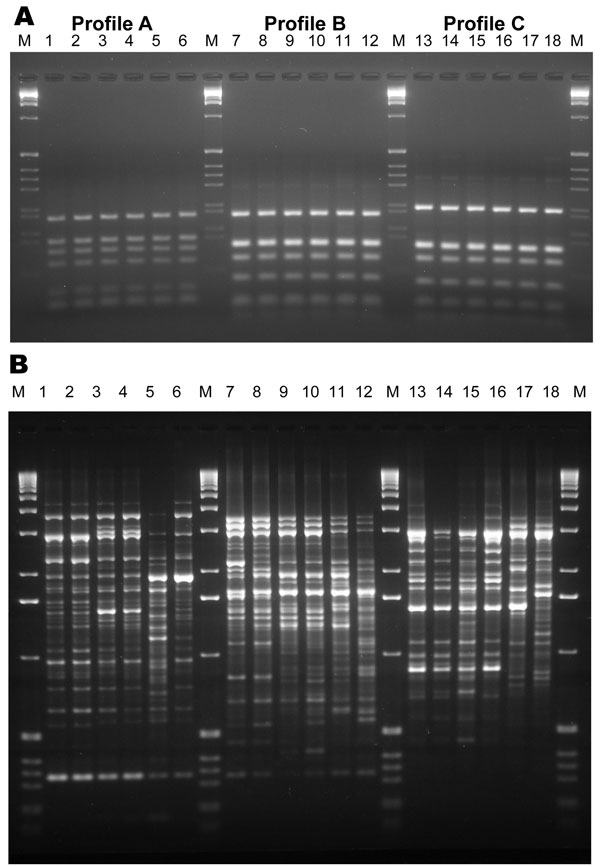 Internal transcribed spacer–restriction fragment length polymorphism (ITS-RFLP) patterns obtained by double digestion with the enzymes Sau96I and HhaI (A) and of the PCR fingerprinting profiles obtained with the microsatellite specific primer M13 (B) for Scedosporium prolificans: lane 1, WM 06.457; lane 2, WM 06.458; lane 3, WM 06.503; lane 4, WM 06.502; lane 5, WM 06.399; lane 6, WM 06.434. S. aurantiacum: lane 7, WM 06.495; lane 8, WM 06.496; lane 9, WM 06.386; lane 10, WM 06.385; lane 11, WM