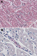 Thumbnail of Histologic and immunohistochemical evaluation of heart tissue. A) Lymphohistiocytic inflammatory cell infiltrates in the myocardium (hematoxylin and eosin stain; original magnification ×25). B) Immunohistochemical detection of spotted fever group rickettsiae (red) in perivascular infiltrates of heart (immunoalkaline phosphatase with naphthol-fast red substrate and hematoxylin counterstain; original magnification ×250.