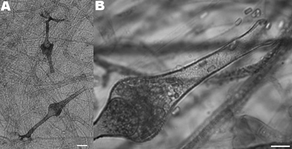 Microscopic characteristics of the isolate of Saksenaea vasiformis cultured on Czapek agar. A) Typical flask-shaped sporangia (scale bar = 25 μm) containing B) smooth-walled, rectangular sporangiospores (scale bar = 10 μm).