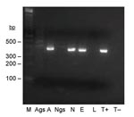 Thumbnail of Seminested PCR detection of Bartonella spp. DNA in Ixodes ricinus ticks fed on B. henselae–infected ovine blood at preceding stage. Lane M, 100-bp DNA molecular mass marker; lane Ags, salivary glands of a female adult fed on infected blood as a nymph; lane A, carcass of a female adult fed on infected blood as a nymph; lane Ngs, salivary glands of a nymph fed on infected blood as a larva; lane N, carcass of a nymph fed on infected blood as a larva; lane E, eggs laid by female adult fed on infected blood; lane L, larvae hatched from female adult fed on infected blood; lane T+, B. bacilliformis DNA; lane T–, nymph fed on uninfected ovine blood.