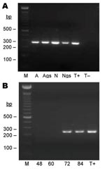 Thumbnail of Seminested PCR detection of Bartonella spp. DNA after partial refeeding of infected ticks. A) Bartonella spp. DNA detection in Ixodes ricinus ticks fed on B. henselae–infected blood at previous development stages and refed for 84 h on uninfected blood. Lane M, 100-bp DNA molecular mass; lane A, carcass of female adult; lane Ags, salivary glands of female adult, lane N, carcass of nymph; lane Ngs, salivary glands of nymph; lane T+, B. bacilliformis DNA; lane T–, nymph fed on uninfected ovine blood. B) Bartonella spp. DNA detection in blood isolated from feeders. Lane M, 100-bp DNA molecular mass marker; lane 48, ovine blood after 48 h of tick attachment on skin; lane 60, ovine blood after 60 h of tick attachment on skin; lane 72, ovine blood after 72 h of tick attachment on skin; lane 84, ovine blood after 84 h of tick attachment on skin; lane T+, B. bacilliformis DNA.