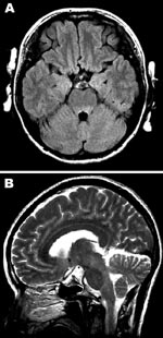 Thumbnail of Magnetic resonance images of the brain. A) Hyperintense lesions in the tegmentum of the pons in the axial section of the fluid-attenuated inversion recovery image. B) In the sagittal section of the T2-weighted image, hyperintense lesions are present in the tegmentum of the midbrain, pons, and medulla oblongata.