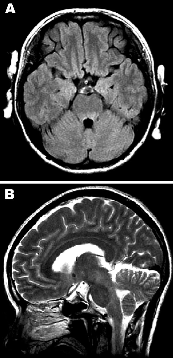 Magnetic resonance images of the brain. A) Hyperintense lesions in the tegmentum of the pons in the axial section of the fluid-attenuated inversion recovery image. B) In the sagittal section of the T2-weighted image, hyperintense lesions are present in the tegmentum of the midbrain, pons, and medulla oblongata.