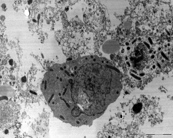 Rickettsia conorii conorii localized in cytoplasm of host cells as seen by electron microscopy (magnification ×100,000).