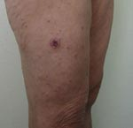 Thumbnail of Typical eschar and spots on the leg of a patient with Mediterranean spotted fever.