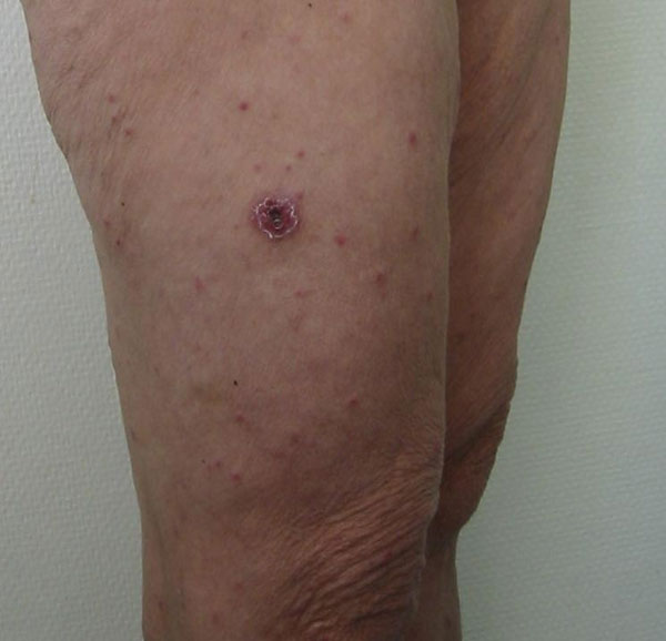 Typical eschar and spots on the leg of a patient with Mediterranean spotted fever.