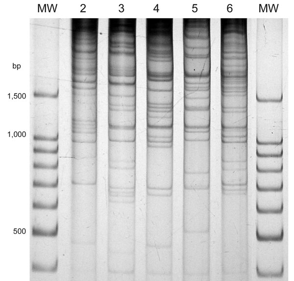Direct genome restriction enzyme analysis with NaeI of clinical isolates of Vibrio parahaemolyticus representative of the 5 patterns observed during the outbreaks in Puerto Montt, Chile, January and February, 2007. Lanes MW, 100-bp size ladder; lane 2, PMC38.7; lane 3, PMC60.7; lane 4, PMC53.7; lane 5, PMC75.7; lane 6, VpKX. (O3:K6 pandemic isolate).