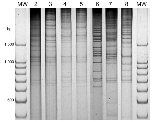 Direct genome restriction enzyme analysis with NaeI of Vibrio parahaemolyticus isolates from shellfish collected in Puerto Montt, Chile, summer, 2007. Gel shows representative strains for every observed pattern. Patterns of groups observed in previous years are next to the type isolate of that group. Lanes MW, 100-bp size ladder; lane 2, PMA4.7; lane 3, 34.6; lane 4, PMA9.7; lane 5, 118; lane 6, PMA1.7; lane 7, PMA11.7; lane 8, PMA21.7.