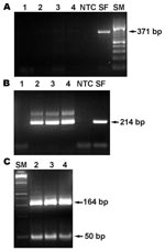 Thumbnail of PCR product from the 17-kDa protein antigen gene obtained from DNA extracted from necropsied tissues of the patient. Primary PCR (A), nested PCR (B), and BfaI restriction enzyme pattern of the 17-kDa protein gene amplicon (C). Lane 1, reagent control; 2, skin; 3, liver; 4, lung; NTC, nontemplate control; SF, Rickettsia conorii DNA control; SM, size markers.