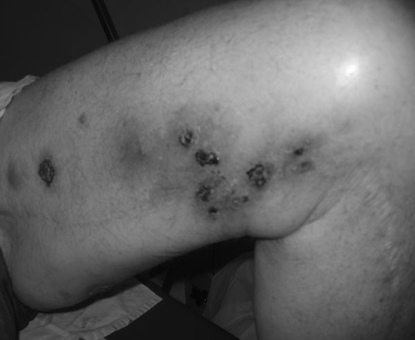 Nodular-ulcerative skin lesions on the left thigh caused by Mycobacterium haemophilum infection in a patient with chronic lymphocytic leukemia (patient 1) whose condition had been treated with alemtuzumab.