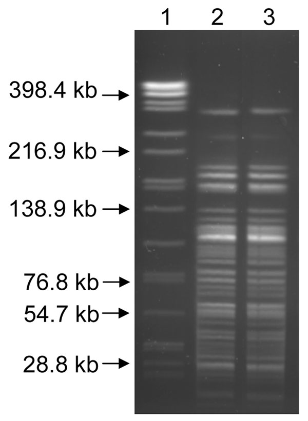 AscI pulsed-field gel electrophoresis patterns for the Yersinia pestis isolates recovered from soil (lane 3) and the mountain lion (lane 2). Lane 1, Salmonella enterica serotype Braenderup standard.
