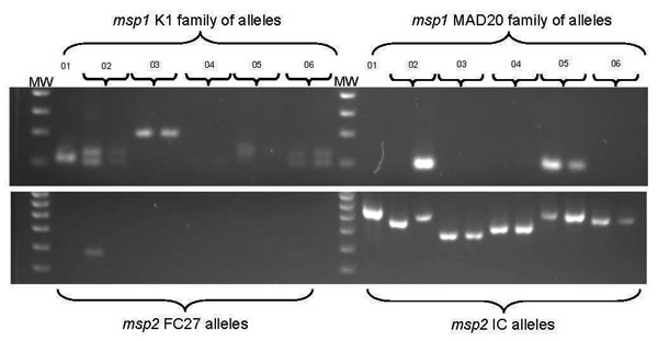 Molecular typing of malarial parasites from 6 US travelers with falciparum malaria returning from East Africa in 2005. Plasmodium falciparum merozoite surface protein 1 (Pfmsp1) (upper gel) and Pfmsp2 (lower gel) allelic variation among isolates was determined by nested PCR and agarose gel electrophoresis. DNA markers (MW) are in lanes 1 and 13 in each gel. Two family-specific primer sets were used for each of the 2 genes. No parasites of the Ro33 allelic family of msp1 were found (data not shown). Pretreatment (day 0) isolates are shown for all patients. Posttreatment (day 1) parasite isolates are also shown for patients 2–6.