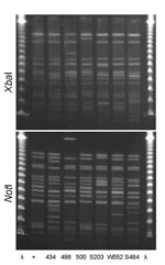 Thumbnail of XbaI and NotI pulsed-field gel electrophoresis patterns for clonal group A Escherichia coli isolated from women with urinary tract infections in Montréal, Québec, Canada, 2006 (lanes 434 and 498) and Berkeley, California, USA, 1999–2001 (lanes 500, S203, W552, and S484). Antimicrobial drug resistance phenotypes and serogroups (O11, O17, O77, and O73) varied within and between the 2 study locations. First and last lanes, bacteriophage λ; lane +, positive control.