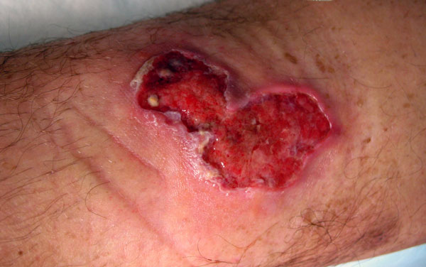 Ulcer (3 × 6 cm) on anterior side of the left leg of the patient, showing an erythematous border.