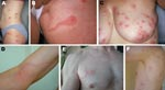 Thumbnail of A–F) Photographs of 6 persons with skin lesions of Pyemotes ventricosus dermatitis. Note the central microvesicles, ulcerations or crusts, and some lesions with the comet sign. D) Lymphangitis-like dermatitis. E, F) Lesions resulting from natural infection of 2 of the investigators.