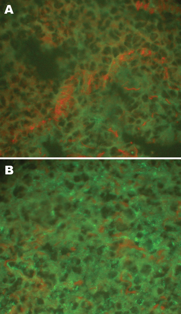 Detection of hantaviral antigens by indirect immunofluorescent assay. A) Hantaviral antigen- negative Rattus norvegicus lung tissue, detected with anti-L99 and 76-118 hantavirus sera. B) Hantaviral antigen-positive R. norvegicus lung tissue, detected with anti-L99 and 76-118 hantavirus antibodies. Magnification ×400.