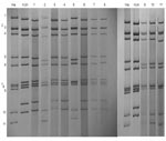 Thumbnail of Polyacrylamide gel electrophoresis and silver staining of rotavirus double-stranded RNA of representative serotype G12 strains from Lilongwe, Malawi. RNA segments are indicated to the left. Strains Wa (long electropherotype) and KUN (short electropherotype) are controls. Field strains, designated electropherotype profiles, and P types are as follows: Lane 1, KCH958 short – profile S1, P[6]; lane 2, KCH1120, long – profile L1, P[6]; lane 3, KCH1124, short – profile S1, P[6]; lane 4,