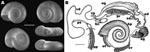 "Thumbnail of A) Shell morphology of Biomphalaria tenagophila snail from Romania. Diameter of the shell was 10–14 mm. The sinistrally coiled, flat shells are yellow-brown, discoidal, deeply and symmetrically biconcave, and consist of 5 or 6 slowly increasing whorls. The last whorl is rounded; the intermediate whorls are slightly angled on the left side. The aperture is circular or slightly ovate and angled toward the left side of the shell (i.e., toward the upper surface on the bottom right shell). Fine, parallel, rib-like transverse lines can be seen on the outer surface of the whorls. A series of photographs were prepared by focusing on different levels of the structure and these were combined by CombineZ5 (www.hadleyweb.pwp.blueyonder.co.uk), using ""do combine"" and ""do average and filter"" commands. Scale bar = 3 mm. B) Reproductive system of B. tenagophila snail from Romania; ag, albumin gland; bc, bursa copulatrix; hp, distal part of the hepatopancreas; ng, nidamental gland; od, oviduct; ot, ovotestis; pp, preputium; pr, prostate; ps, penis sheath; sd, spermiduct; sv, seminal vesicles; vd, vas deferens; vp, vaginal pouch. B. tenagophila–specific characteristics (5): >200 diverticulae of the ovotestis; 7–11 main lobes of the prostate; and presence of vaginal pouch. Scale bar = 1 mm."