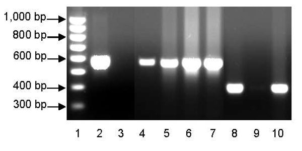 PCR typing of Francisella tularensis, clades A1 and A2, in dessicated lagomorph carcasses. Lane 1, 100-bp ladder (Bio-Rad, Hercules, CA, USA); lane 2, A1 positive control (Schu S4); lane 3, A1 negative control (NM99); lane 4, UT07–5156 (A1); lane 5, UT07–5152 (A1); lane 6, UT07–5157 (A1), lane 7, UT07–5159 (A1), lane 8, A2 positive control (NM99); lane 9, A2 negative control (Schu S4); lane 10, UT07–5161 (A2).