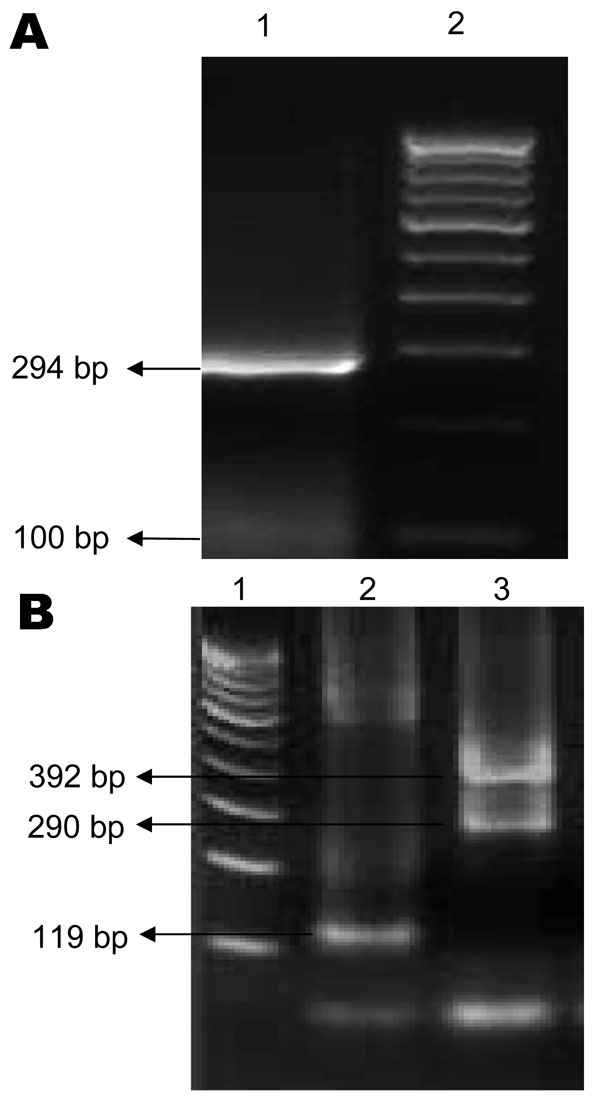 Agarose gel electrophoresis showing chikungunya virus (A) and dengue virus (B) PCR products. A) Lane 1, 294-bp product specific for chikungunya virus; lane 2, 100-bp DNA marker. B) Lane 1, 100-bp DNA marker; lane 2, 119-bp product specific for dengue 2 virus; lane 3, 290-bp product for dengue 3 virus and 392-bp product for dengue 4 virus.
