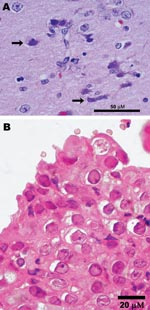 Thumbnail of Photomicrographs showing A) encephalitis with neuronal necrosis and intranuclear inclusions (arrows) in a polar bear (Ursus maritimus); scale bar = 50 μm; hematoxylin and eosin stain; and B) Grevy's zebra (Equus grevysi) with acute rhinitis with eosinophilic inclusions in respiratory epithelium; scale bar = 20 μm; hematoxylin and eosin stain.
