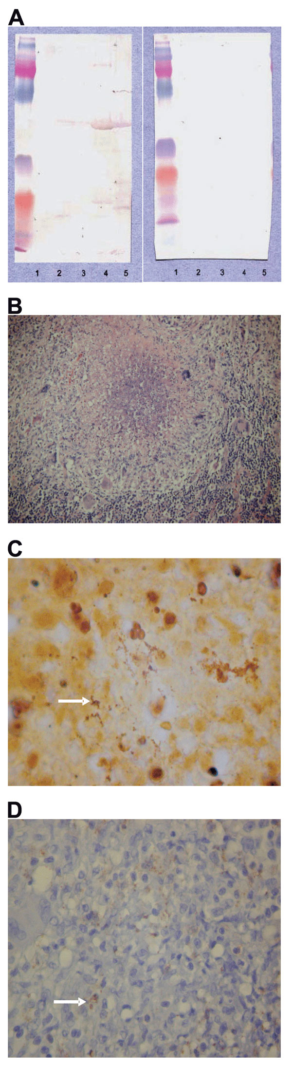 A) Western blotting analysis of lymph node specimen from the patient before 1) and after 2) cross-adsorption with Bartonella alsatica. Lane 1, B. quintana; lane 2, B. henselae; lane 3, B. elizabethae; lane 4, B. vinsonii subsp. berkhoffii; lane 5, B. alsatica. B) Characteristic histologic change in the lymph node with B. alsatica infection. Shown is an inflammatory granulomatous process with central microabscess surrounded by a ring of macrophages and rare giant cells (hematoxylin and eosin stain, original magnification x100). C) Bacteria (arrow) in an abscess formation mixed with necrotic debris (Warthin-Starry silver stain, original magnification x1,000). D) Immunohistochemical detection of B. alsatica (arrow) in lymph node pulp with an extracellular distribution (polyclonal antibody and hematoxylin counterstain, original magnification x400).