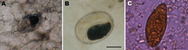 A) Metacercaria of Opisthorchis felineus in muscles of a tench (Tinca tinca) from Lake Bolsena (Latium region, central Italy). Scale bar = 100 μm. B) Metacercaria of O. felineus collected from a tench filet by digestion with 1% pepsin and 1% HCl. Scale bar = 100 μm. C) Egg detected in feces of the index patient of the August 2007 outbreak. Scale bar = 10 μm.