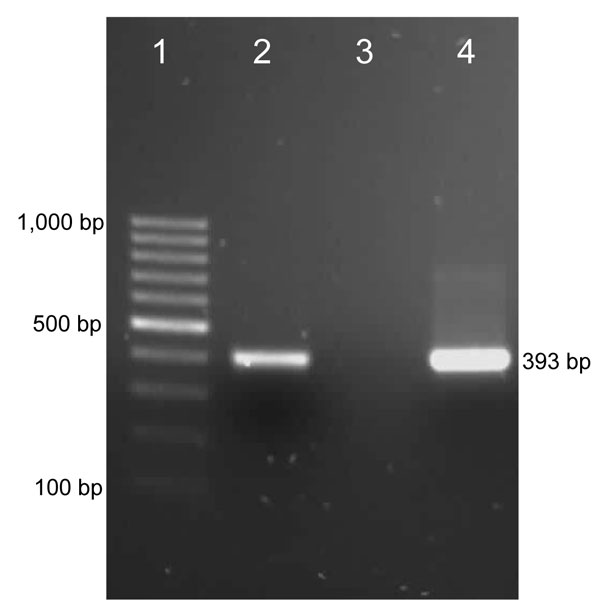 PCR results for detection of a Mycoplasma haemofelis–like organism in an HIV-positive patient. Lane 1, 100-bp marker; lane 2, positive control (DNA from blood of an M. haemofelis–positive cat); lane 3, negative control (water); lane 4, DNA from blood of the patient.