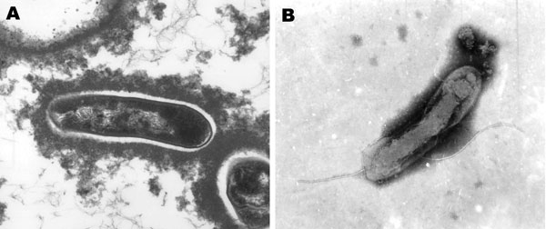 Transmission electron micrographs of Candidatus Bartonella melophagi–like isolate 05-HO-1 from a human (A) (image provided by the North Carolina State University–College of Veterinary Medicine Electron Microscopy Facility, Raleigh, NC, USA) and Candidatus B. melophagi isolate from a sheep ked (B) (image provided by V. Popov, University of Texas Medical Branch, Galveston, TX, USA). Magnification ×41,000 in A and ×62,700 in B.
