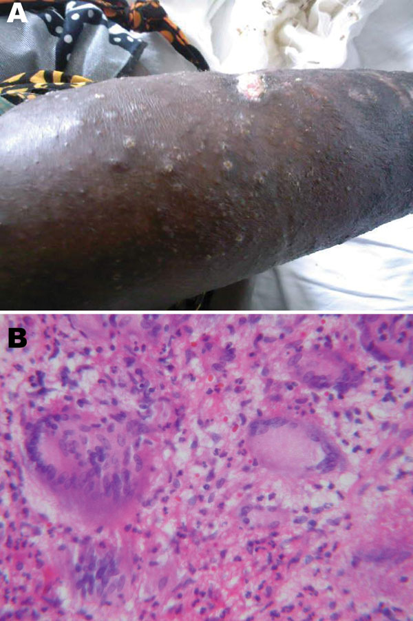 A 36-year-old HIV-infected woman with Mycobacterium avium disease. A) Photograph of skin lesions on right leg, taken before treatment. B) Histopathologic appearance of skin biopsy specimen from right leg lesion (stain, hematoxylin and eosin; magnification ×40).