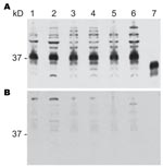 Thumbnail of Proteinase K–sensitive prion protein (PrPsen) Western blot analysis from 6 hamster species performed with A) polyclonal antibody R30 (89–103) or B) R30 preincubated with peptide to prion protein 89–103. Hamster species: lane 1, Syrian; lane 2, Turkish; lane 3, Djungarian; lane 4, Syrian; lane 5, Chinese; lane 6, Armenian. Lane 7, proteinase K–resistant prion protein (PrPres) from 263K Syrian hamsters. 0.8 mg tissue equivalents per lane; 37 kDa indicated.