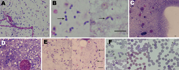 Microscopic appearance of Babesia sp. EU1 sporozoites isolated from tick salivary glands and of subsequent asexual development in erythrocytes. Sporozoites were stained with Giemsa and observed in the suspension of crushed salivary glands (A, B) and from salivary glands directly crushed between slides (C, D, E). Arrows indicate sporozoite dividing forms. A composite panel of asexual stages cultivated in sheep erythrocytes from these sporozoites is presented (F); developmental stages are indicate