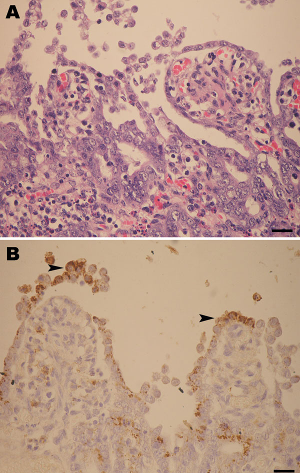 A) Marked shortening and blunting of the intestinal villi (scale bar = 25 µm). B) Intestinal epithelial cells expressing porcine epidemic diarrhea virus antigen (arrowheads) in the cytoplasm (colon), visible as brown staining (scale bar = 25 µm).