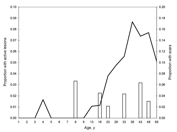 Age prevalence curve of persons with lesions (white bars) and scars (black line) from cutaneous leishmaniasis, Bolivia, 2007.