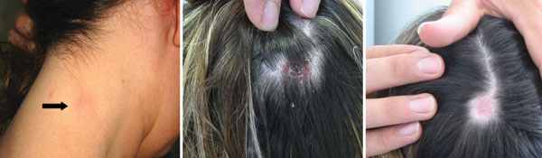 Typical signs of TIBOLA (tick-borne lymphadenopathy)/DEBONEL (Dermacentor-borne necrosis erythema and lymphadenophy). Here, infections were caused by Rickettsia slovaca , resulting in cervical lymphadenopathy (left panel, arrow), inoculation on the scalp (middle panel), and residual alopecia 4 weeks later (right panel).