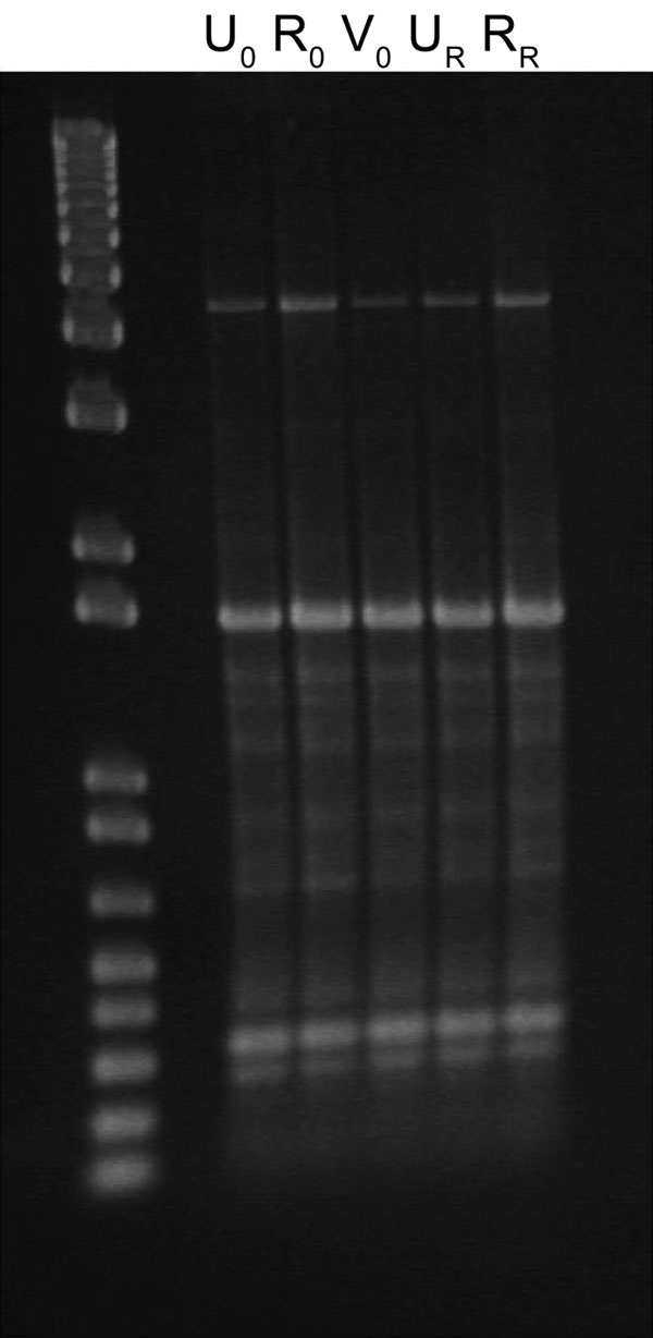 Enterobacterial repetitive intergenic consensus typing of extended-spectrum β-lactamase–producing Escherichia coli isolated from index (0) and recurring (R) urine (U), rectal (R), and vaginal (V) samples from a nonpregnant young woman.