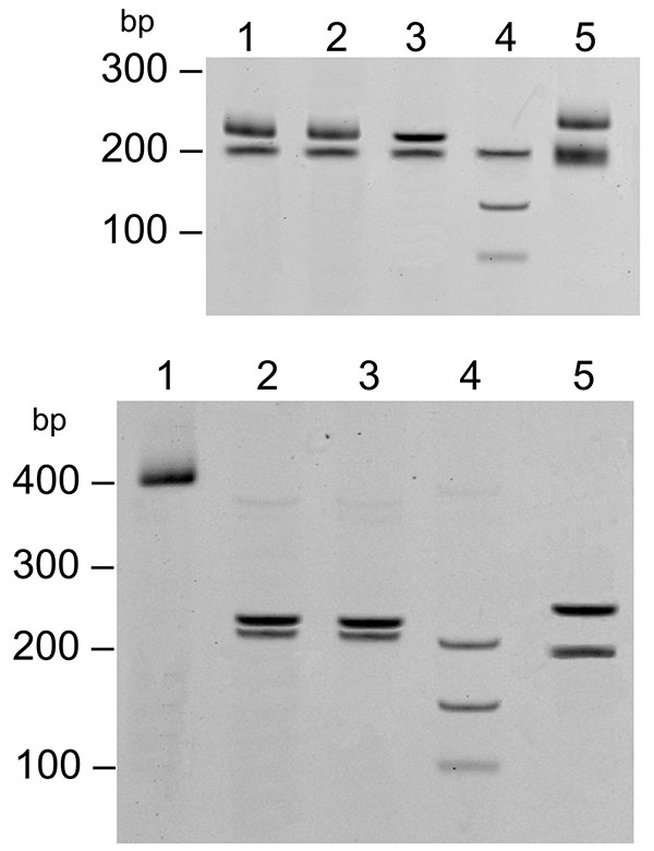 Restriction fragment length polymorphism of the 17-kDa PCR product (434 bp) digested with AluI. Top: lane 1, 32-year-old woman; lane 2, 9-year-old girl; lane 3, Rickettsia akari–positive control; lane 4, R. rickettsii–positive control; lane 5, R. typhi–positive control. Bottom: lane 1, undigested 17-kDa gene PCR amplicon; lane 2, 9-year-old girl; lane 3, 32-year-old woman; lane 4, R. conorii–positive control; lane 5, R. honei–positive control.