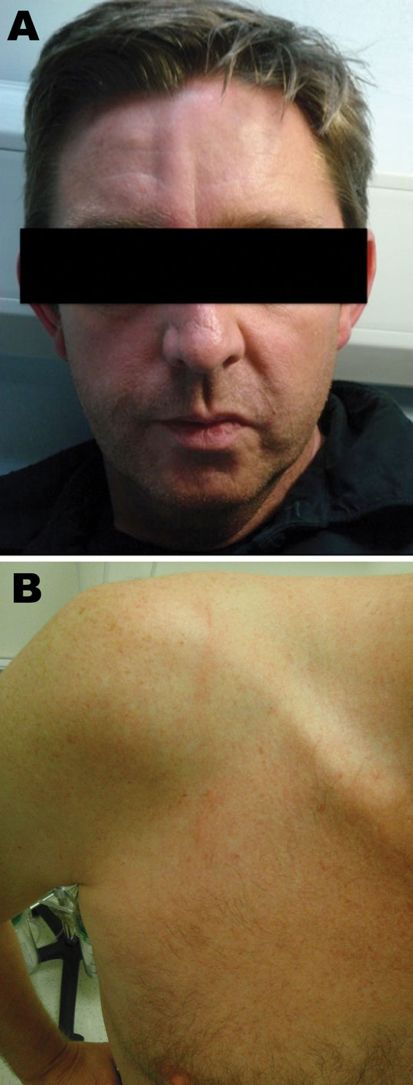 Cutaneous larva migrans on the forehead (A) and shoulder (B) of a male British tourist who had visited Botswana.