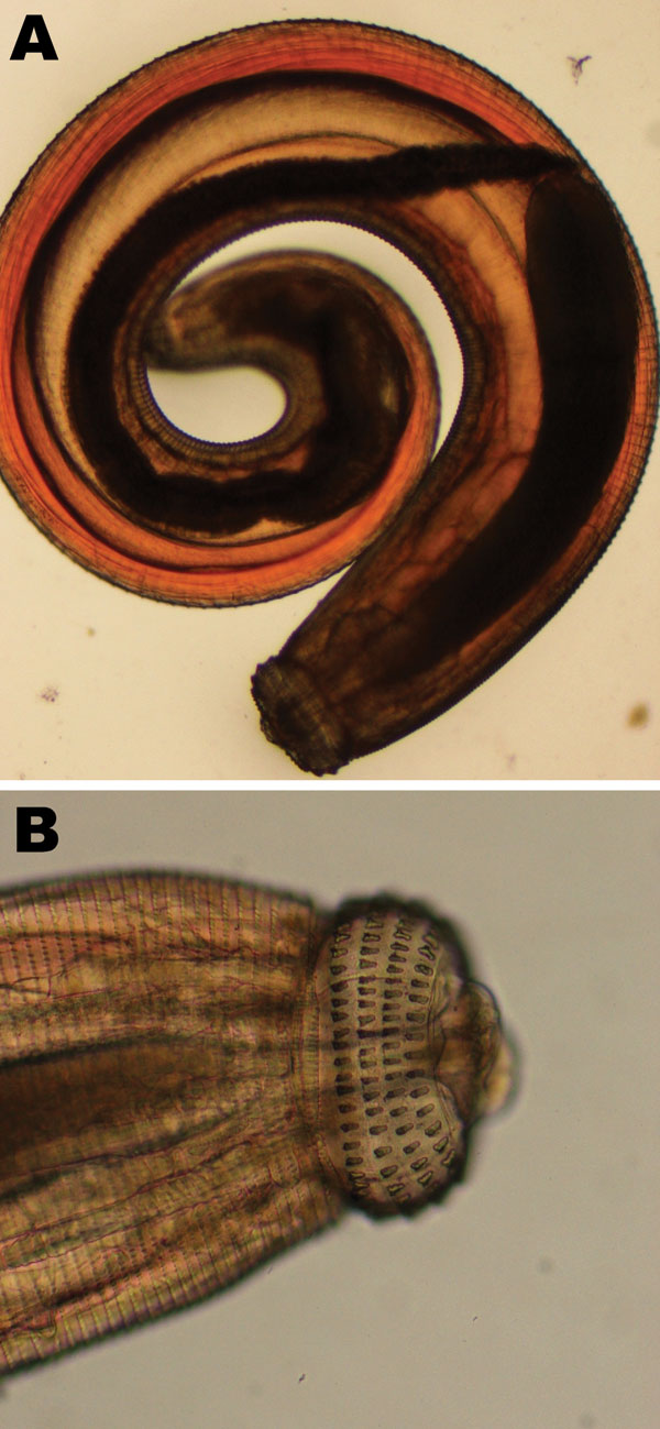 Third-stage larva of Gnathostoma spinigerum, which was expressed from the face of a male British tourist who had visited Botswana. Photograph shows entire larva (A) and larva head with hooks (B).